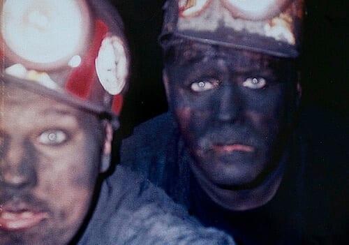Coalworker's Pneumoconiosis
